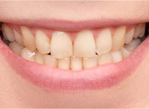 close u before teeth whitening